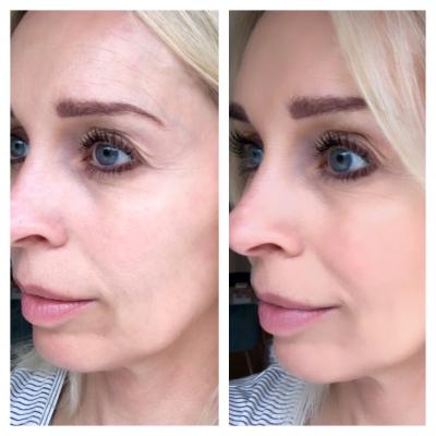 billeder hudcancer i ansigt