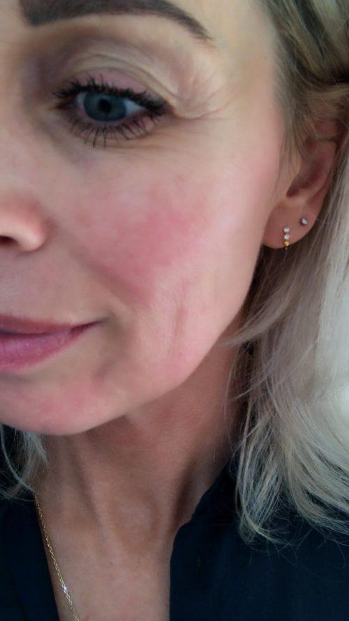 Skin Roller, Swiss Clinic, Rejuvenating Serum, serum, hud, hudpleje