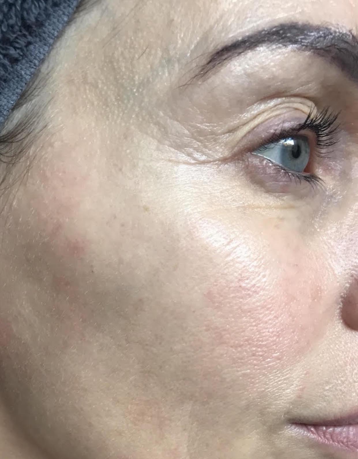 hudpleje, 40+ år, øjencreme, serum, ansigtscreme, tips