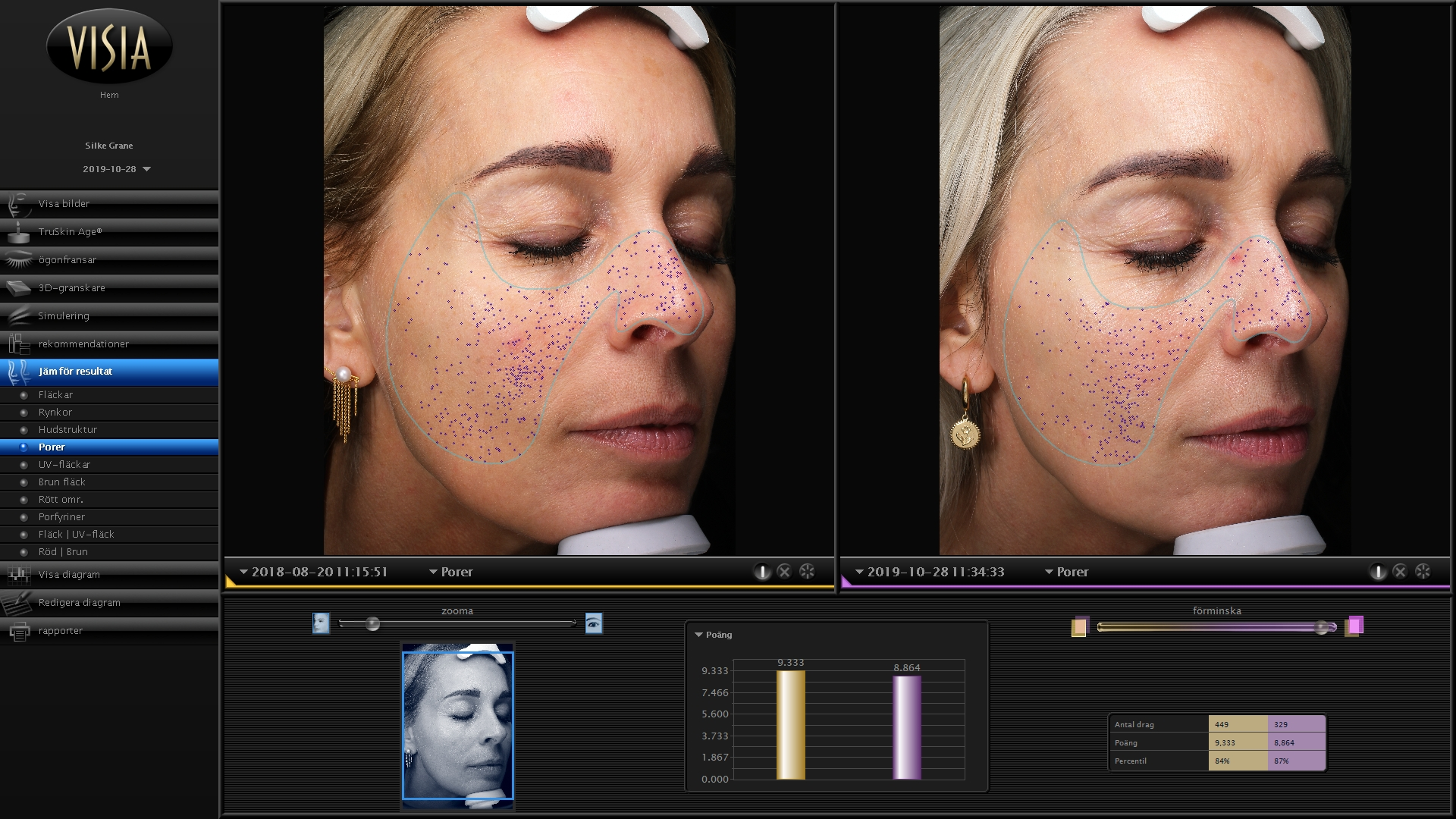 Oslo Skin Lab, The Solution, indre skønhed, hudpleje, kosttilskud