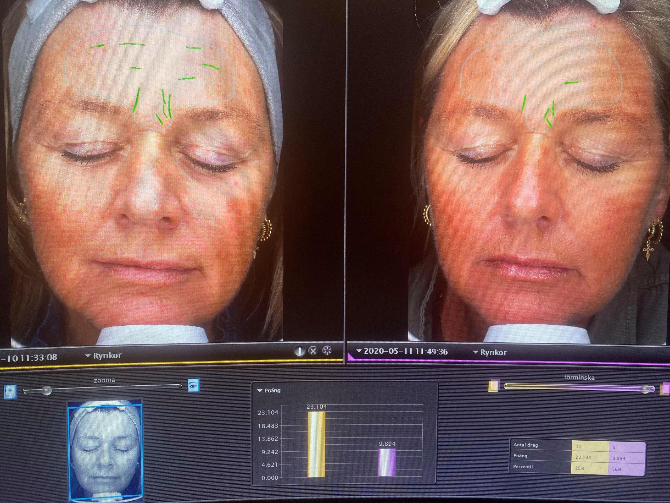 Oslo Skin Lab, test af Oslo Skin Lab, hudpleje indefra, kosttilskud