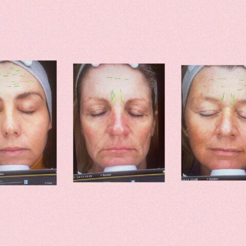 Test af Oslo Skin Lab – hvem fik de bedste resultater?