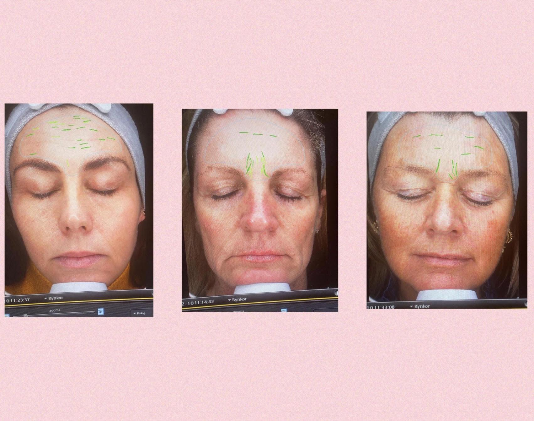 Oslo Skin Lab, test, kollagen, hudpleje indefra, kosttilskud